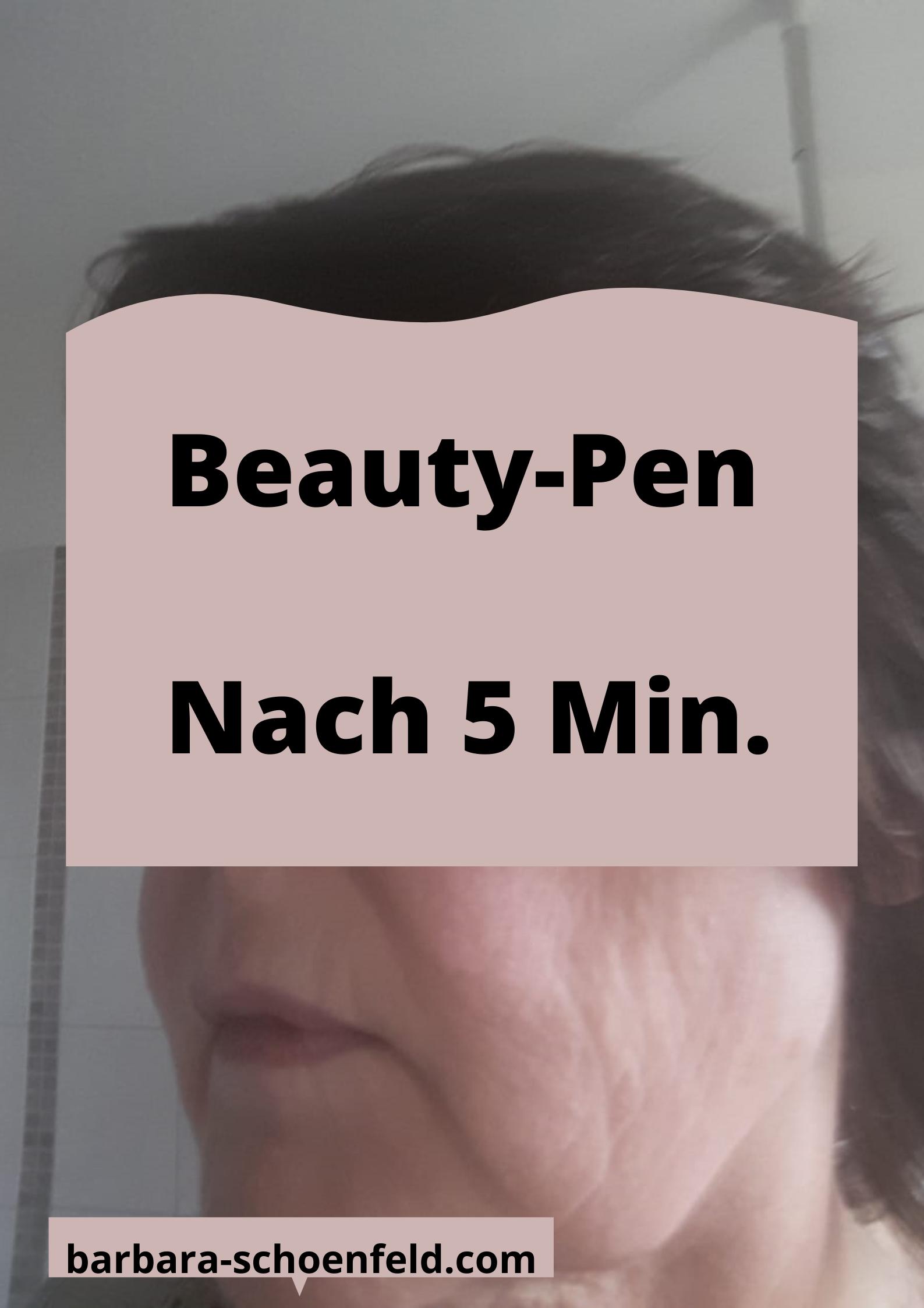 Juchheim-Beautypen-nachher1