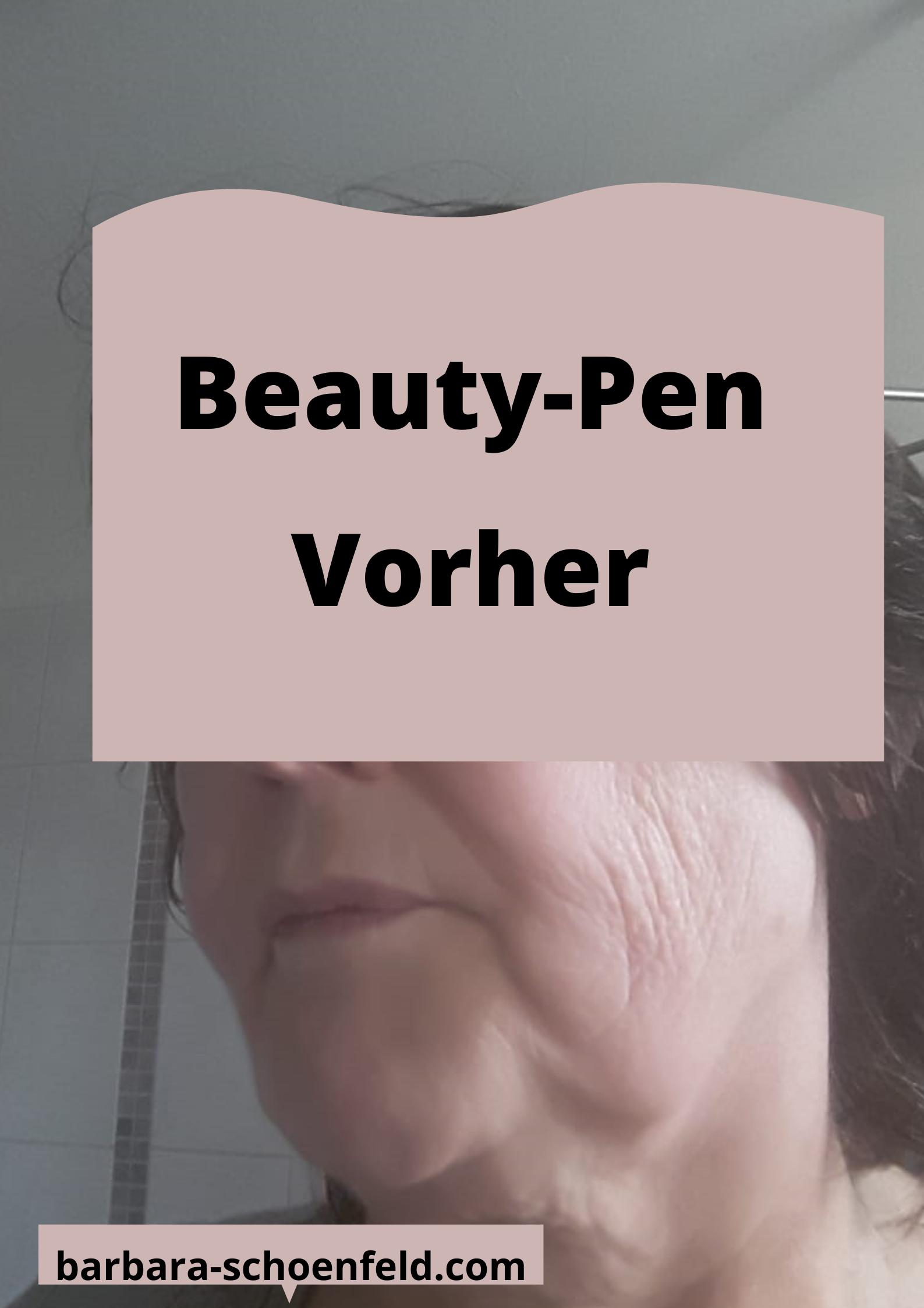 Juchheim-Beautypen-vorher1